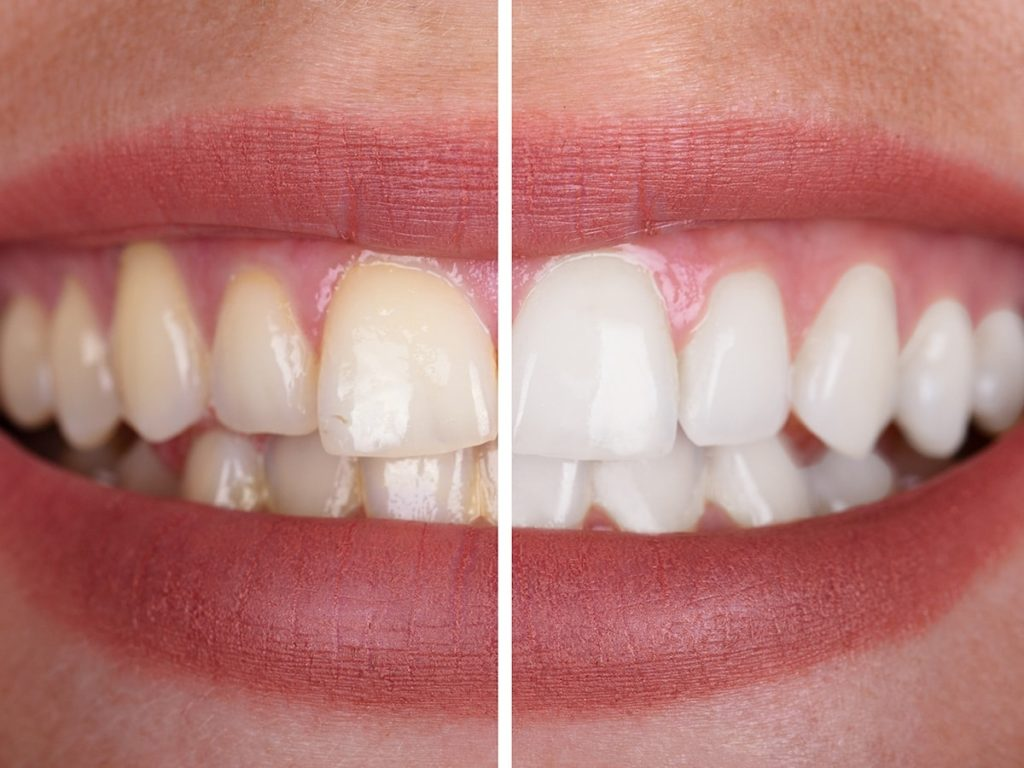 Teeth Whitening in Longview TX -Dental Bleaching - Whiter Smile - Robert B. Guttry DDS - Guttry Dental